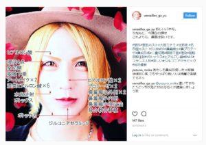 桜花優我さんのメンズ整形画像(instagramより)